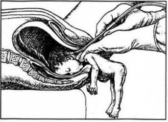 nascitaparziale