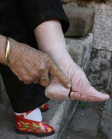 piedi Cina 5